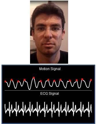Head Motions Offer Better Way To Detect >> Detecting Pulse From Head Motions In Video