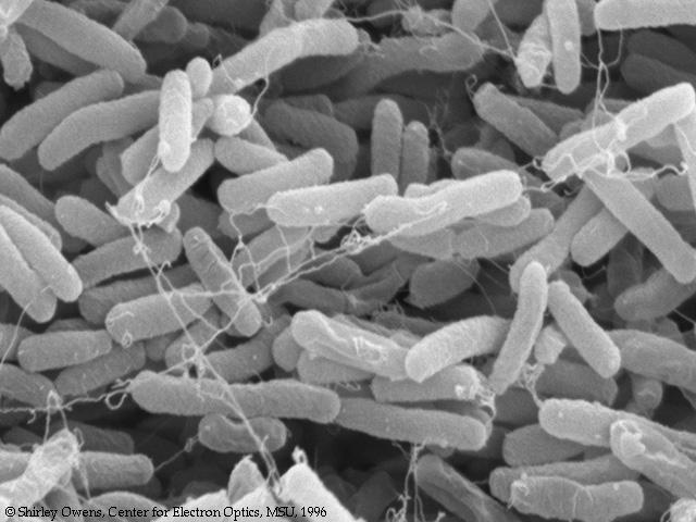 escherichia-coli-vo-vlagalishe