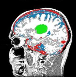 brain tumor segmentation thesis Automatic segmentation of brain structures for radiotherapy planning by pallavi v joshi thesis (tumor) as well as of the structures.