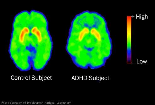 ADHD brains